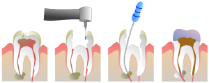 600px-Root_Canal_Illustration_Molar.svg